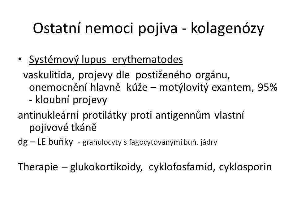 Ostatní nemoci pojiva - kolagenózy