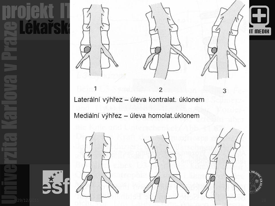 Laterální výhřez – úleva kontralat. úklonem