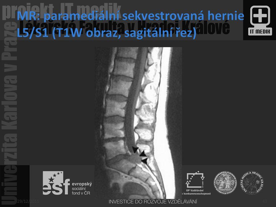 MR: paramediální sekvestrovaná hernie L5/S1 (T1W obraz, sagitální řez)