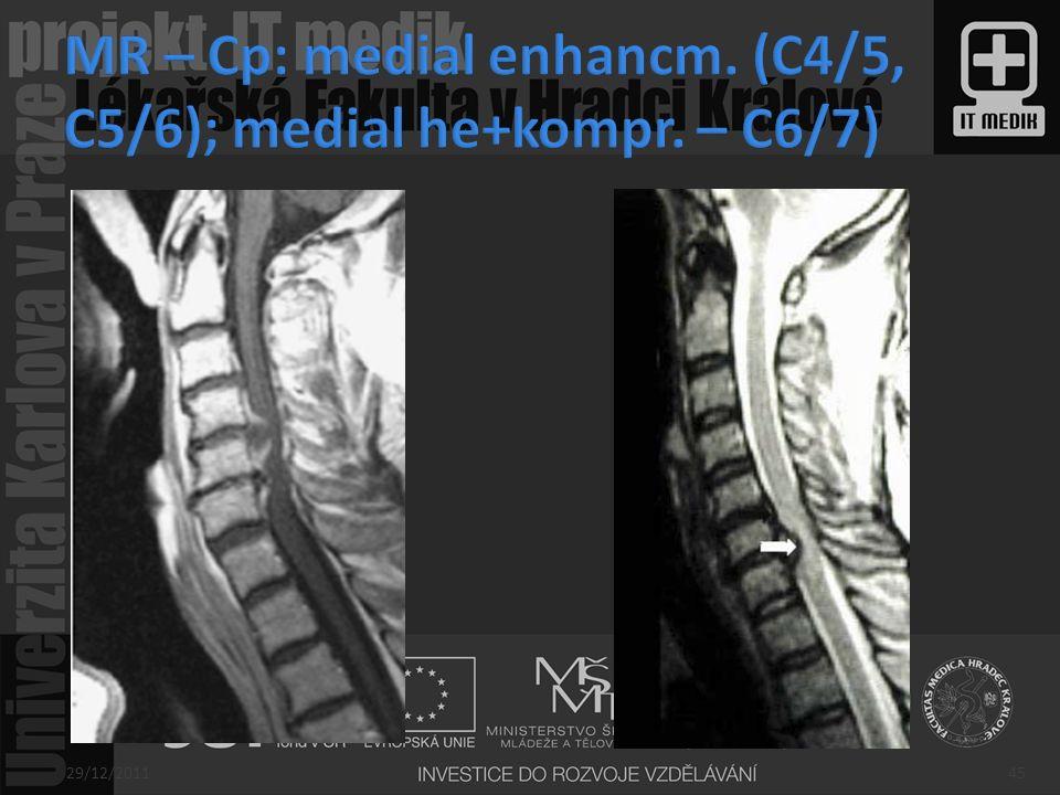 MR – Cp: medial enhancm. (C4/5, C5/6); medial he+kompr. – C6/7)