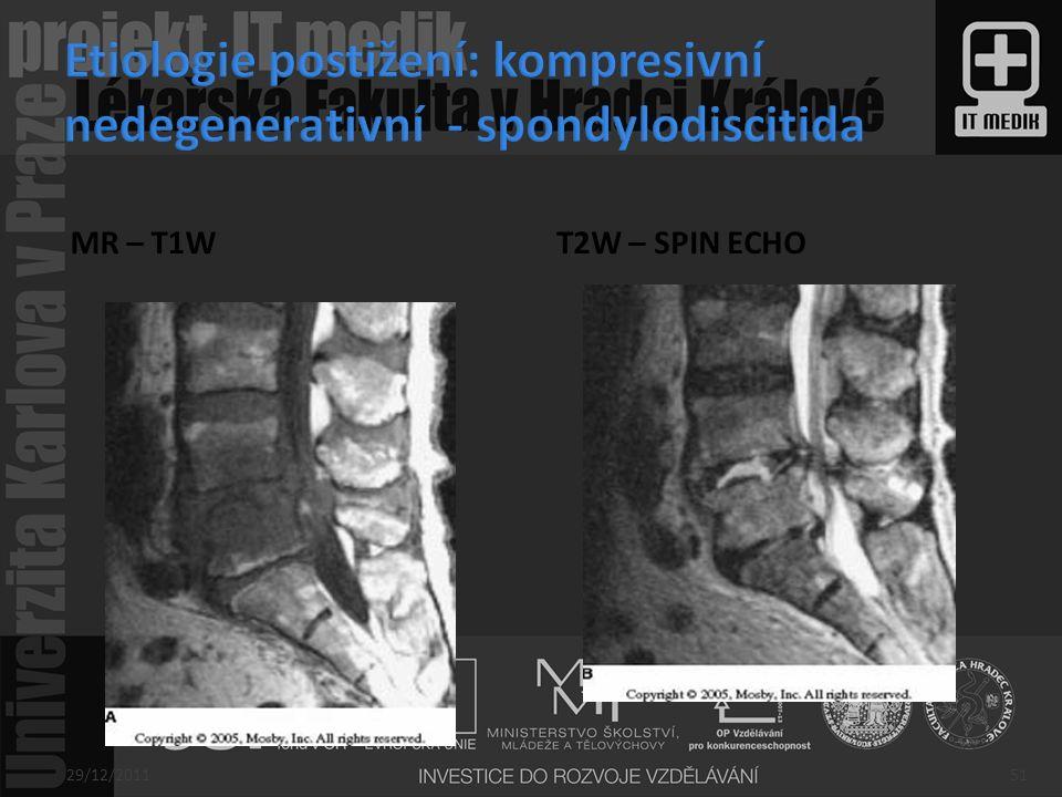 Etiologie postižení: kompresivní nedegenerativní - spondylodiscitida