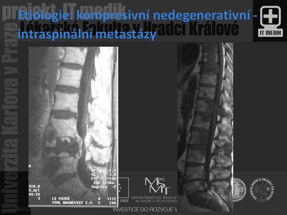 Etiologie: kompresivní nedegenerativní - intraspinální metastázy