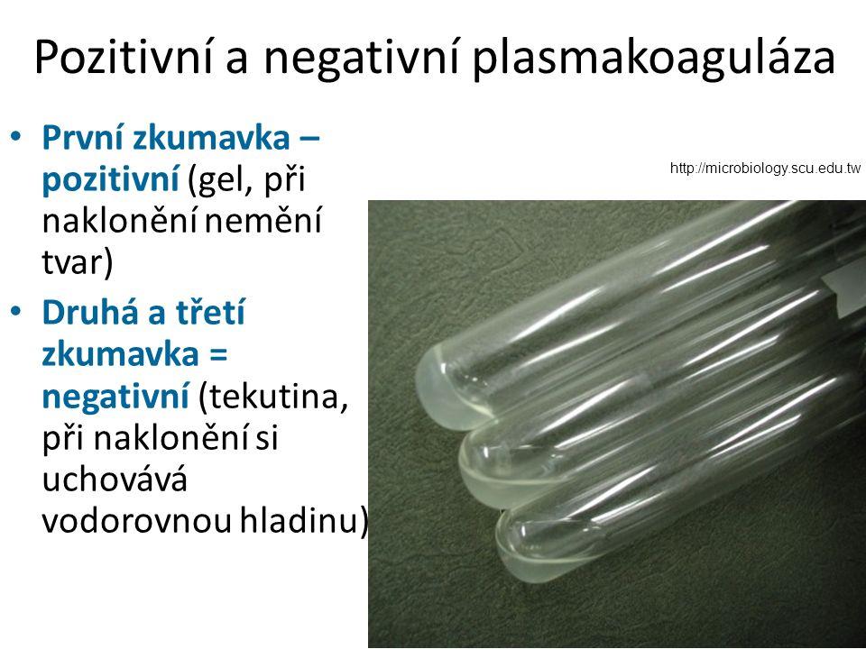 Pozitivní a negativní plasmakoaguláza