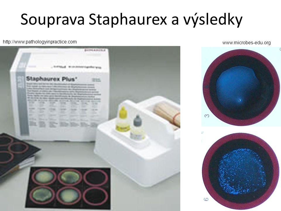 Souprava Staphaurex a výsledky