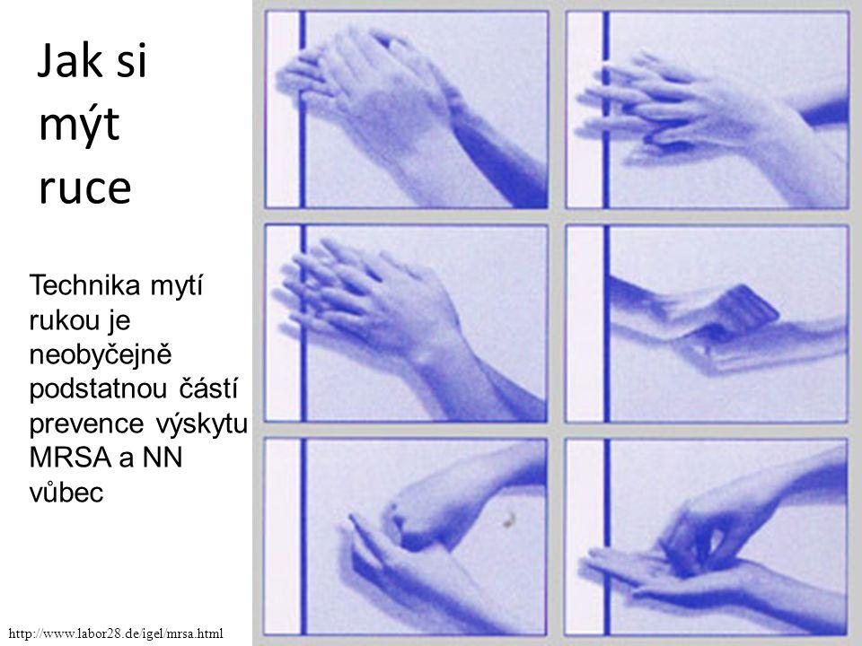 Jak si mýt ruce Technika mytí rukou je neobyčejně podstatnou částí prevence výskytu MRSA a NN vůbec.