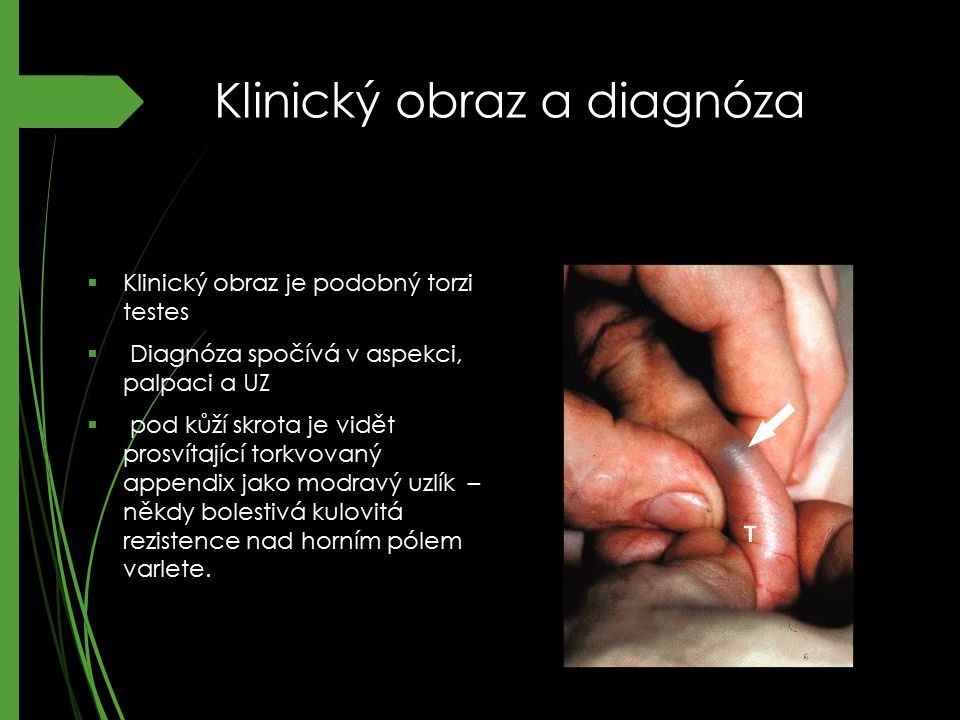 Klinický obraz a diagnóza