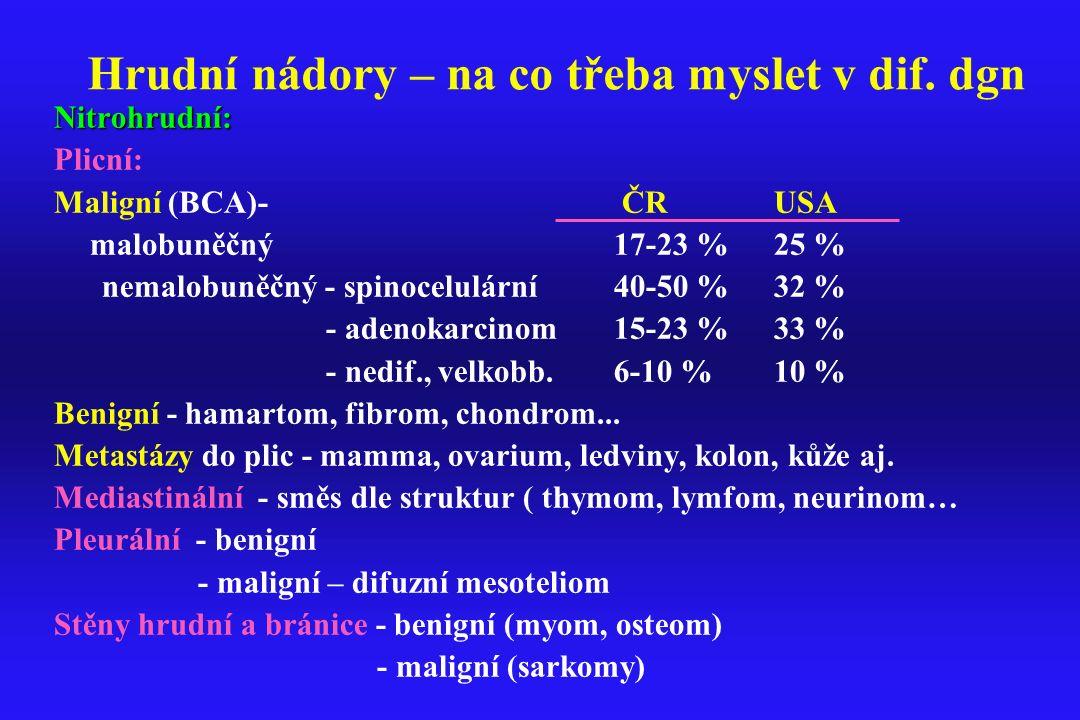 Hrudní nádory – na co třeba myslet v dif. dgn