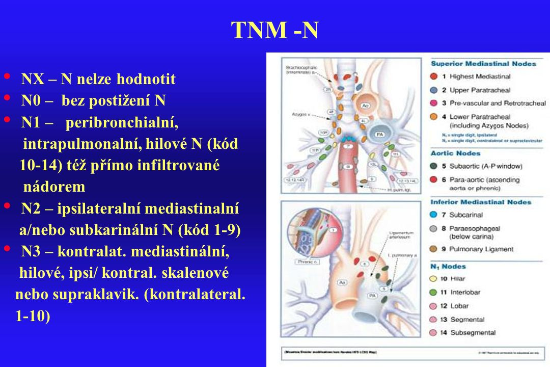 TNM -N NX – N nelze hodnotit N0 – bez postižení N