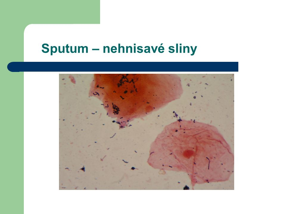 Sputum – nehnisavé sliny