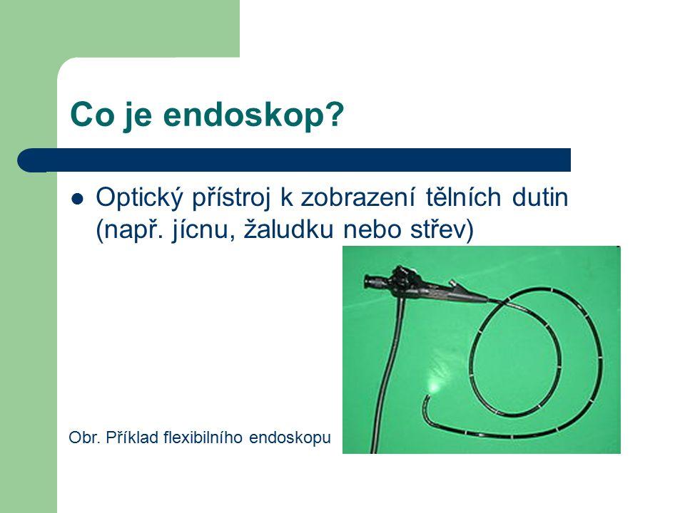 Co je endoskop. Optický přístroj k zobrazení tělních dutin (např.