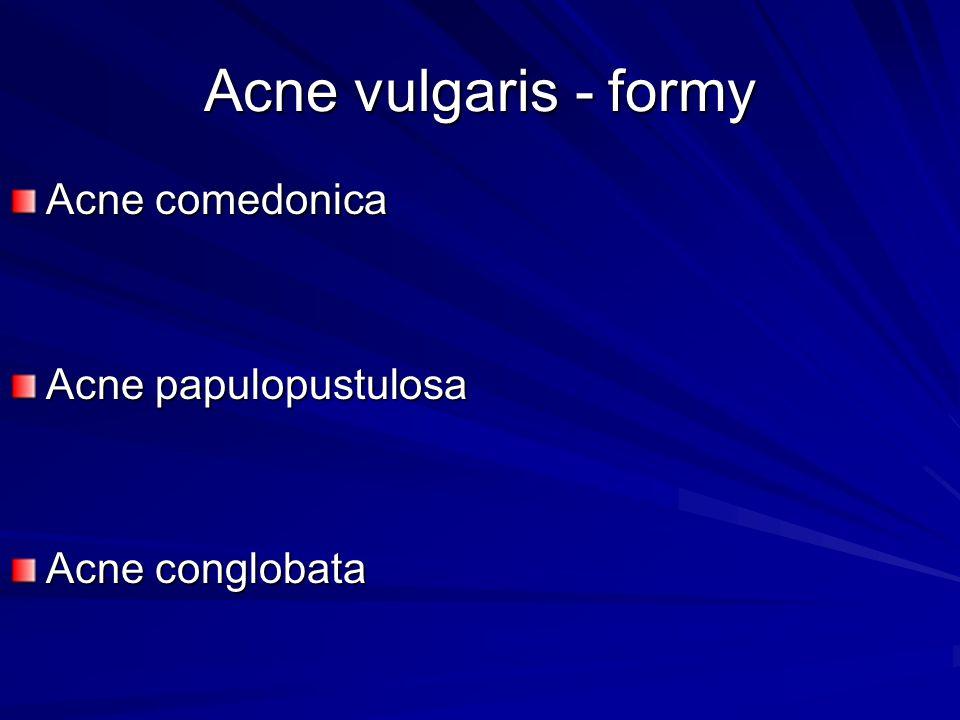 Acne vulgaris - formy Acne comedonica Acne papulopustulosa