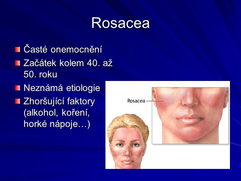 Rosacea Časté onemocnění Začátek kolem 40. až 50. roku