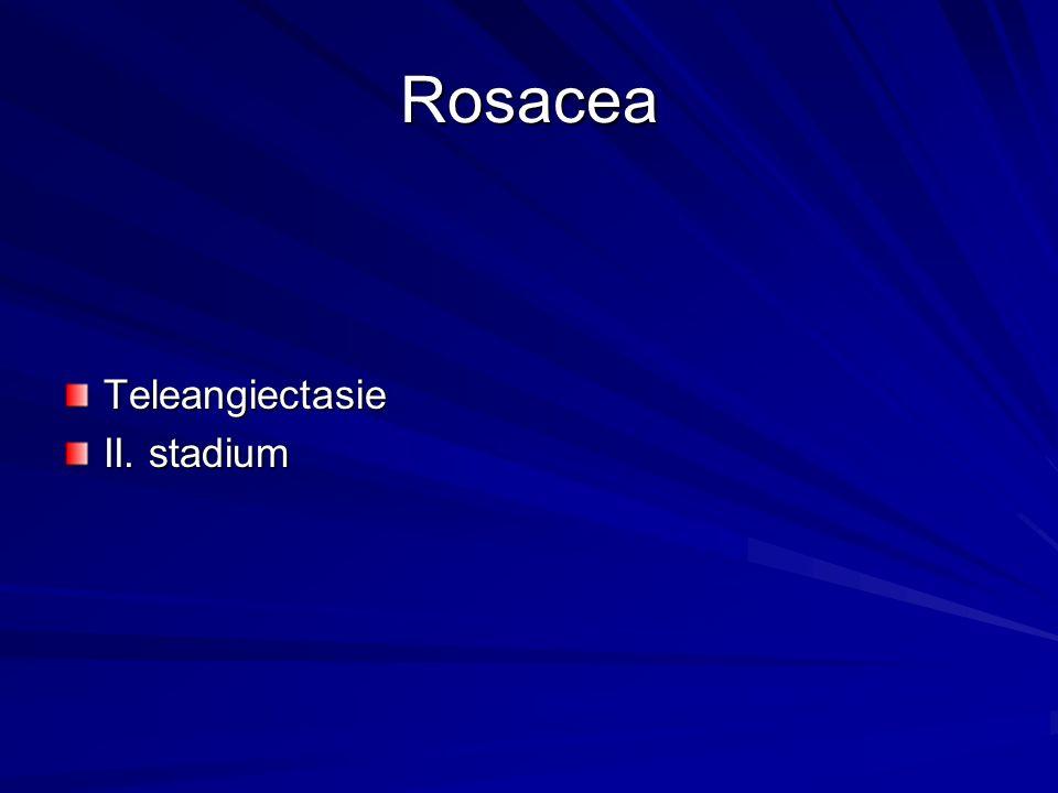 Rosacea Teleangiectasie II. stadium