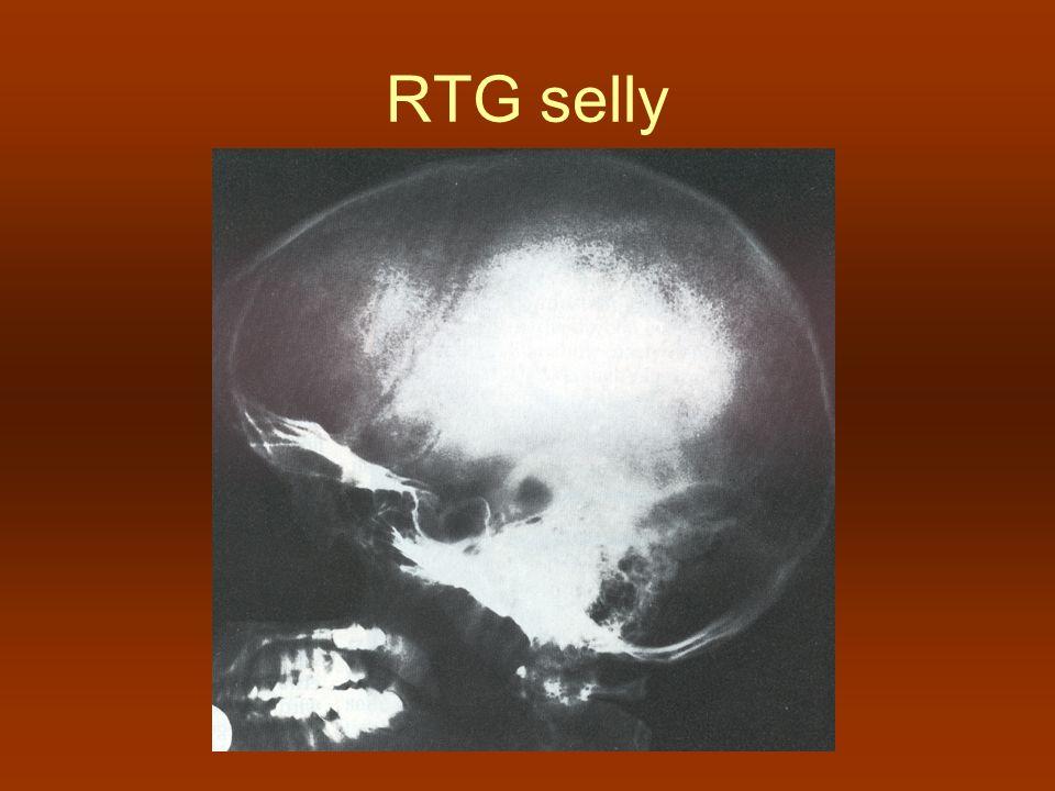 RTG selly