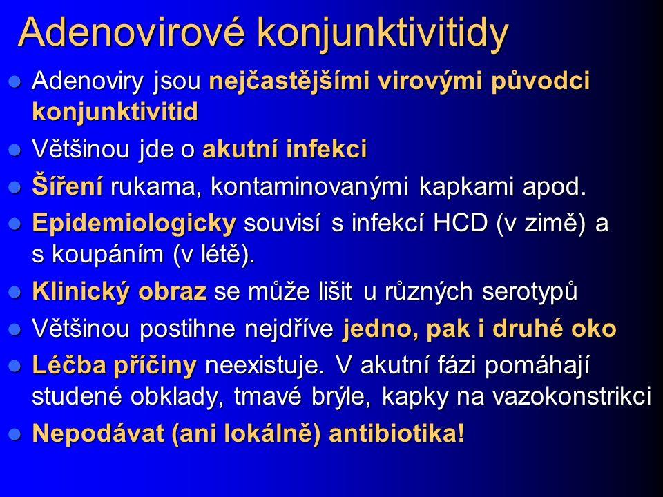 Adenovirové konjunktivitidy