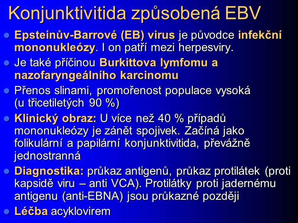 Konjunktivitida způsobená EBV