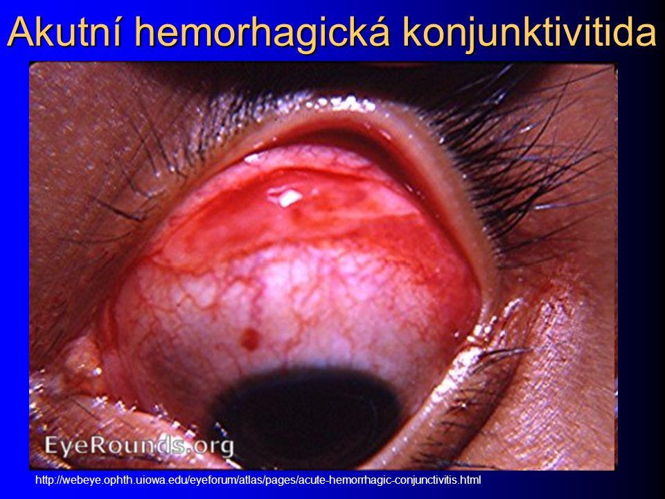 Akutní hemorhagická konjunktivitida