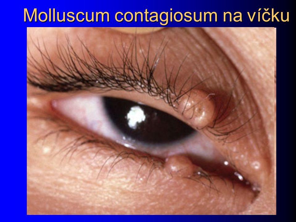Molluscum contagiosum na víčku
