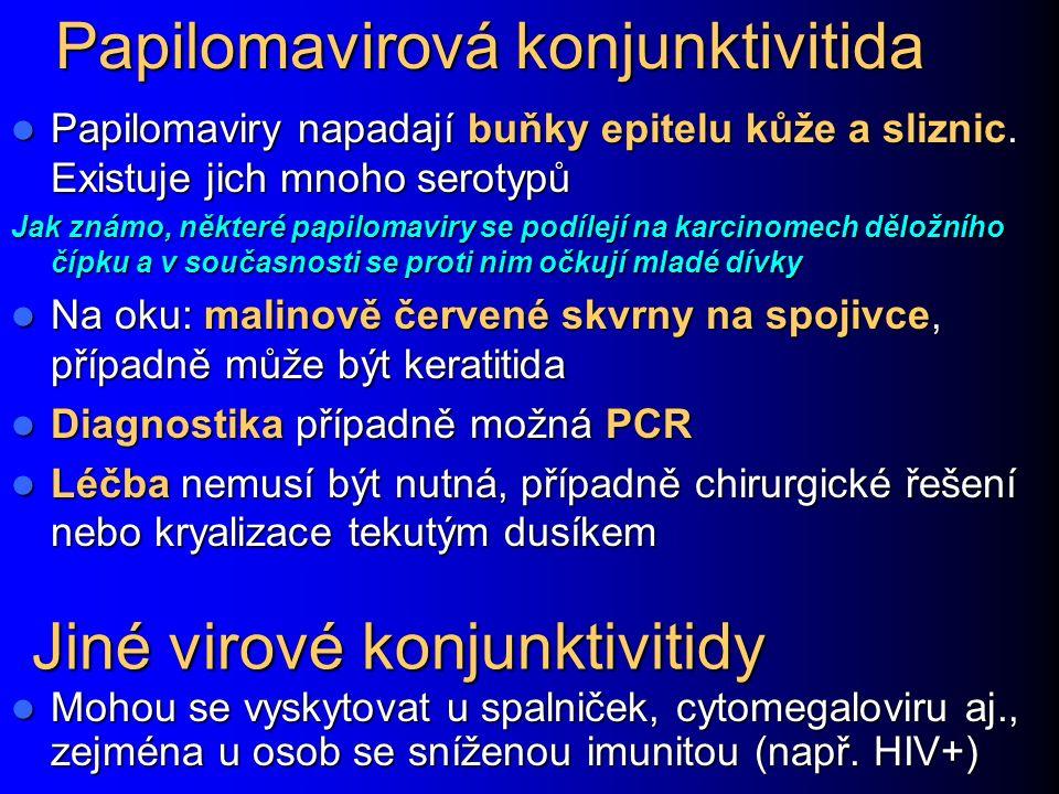Papilomavirová konjunktivitida