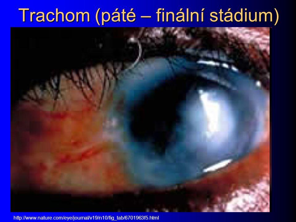 Trachom (páté – finální stádium)