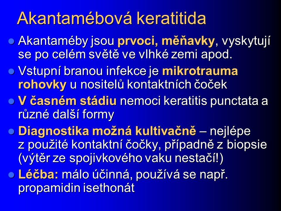Akantamébová keratitida