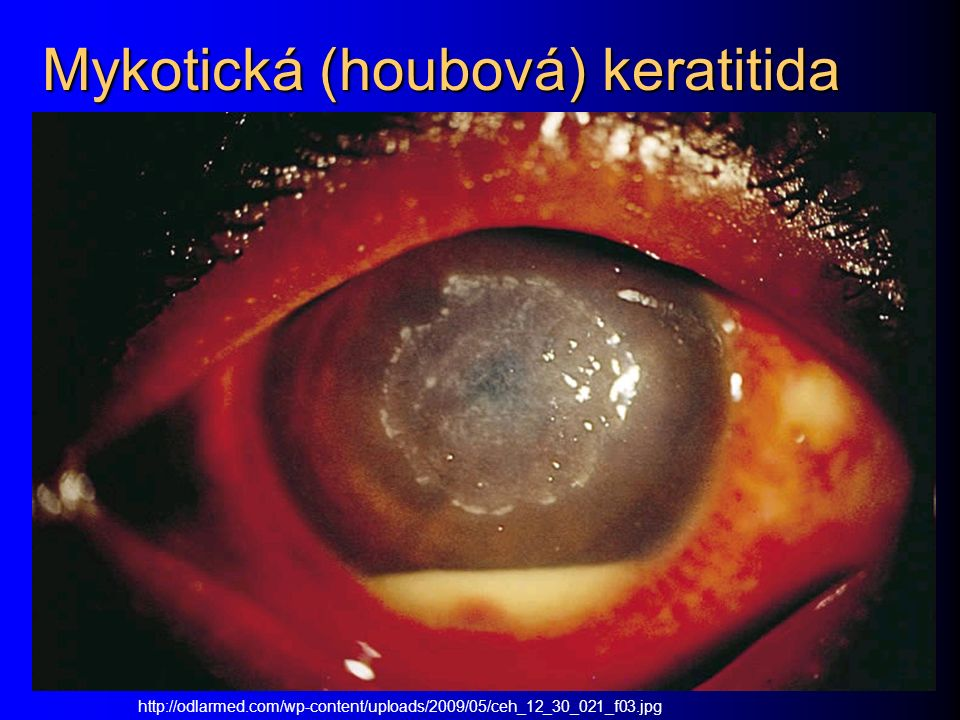 Mykotická (houbová) keratitida