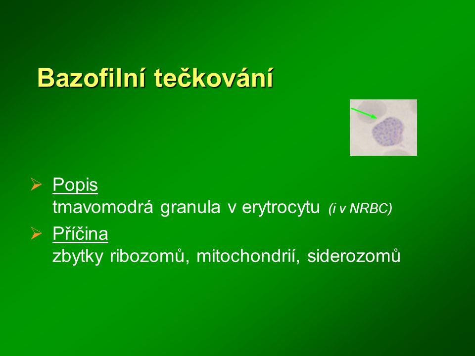 Bazofilní tečkování Popis tmavomodrá granula v erytrocytu (i v NRBC)