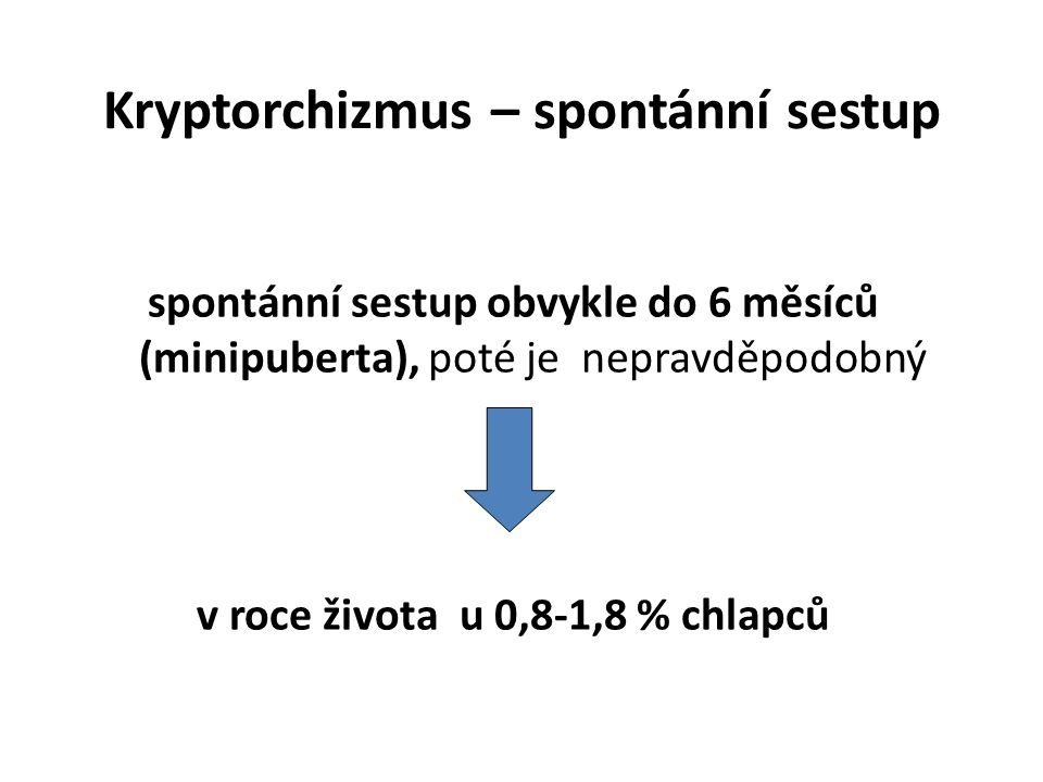 Kryptorchizmus – spontánní sestup