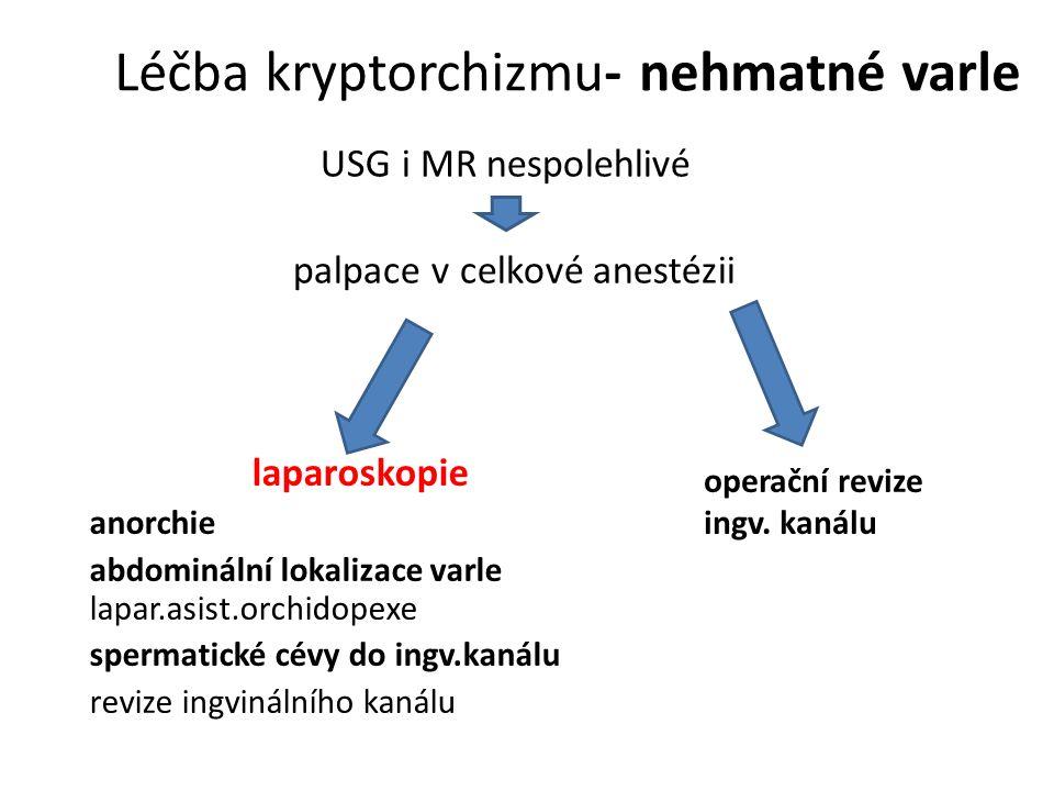 Léčba kryptorchizmu- nehmatné varle