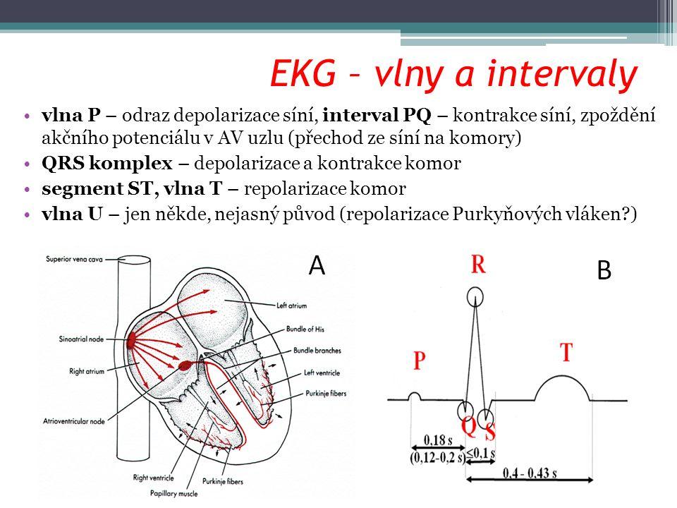 EKG – vlny a intervaly