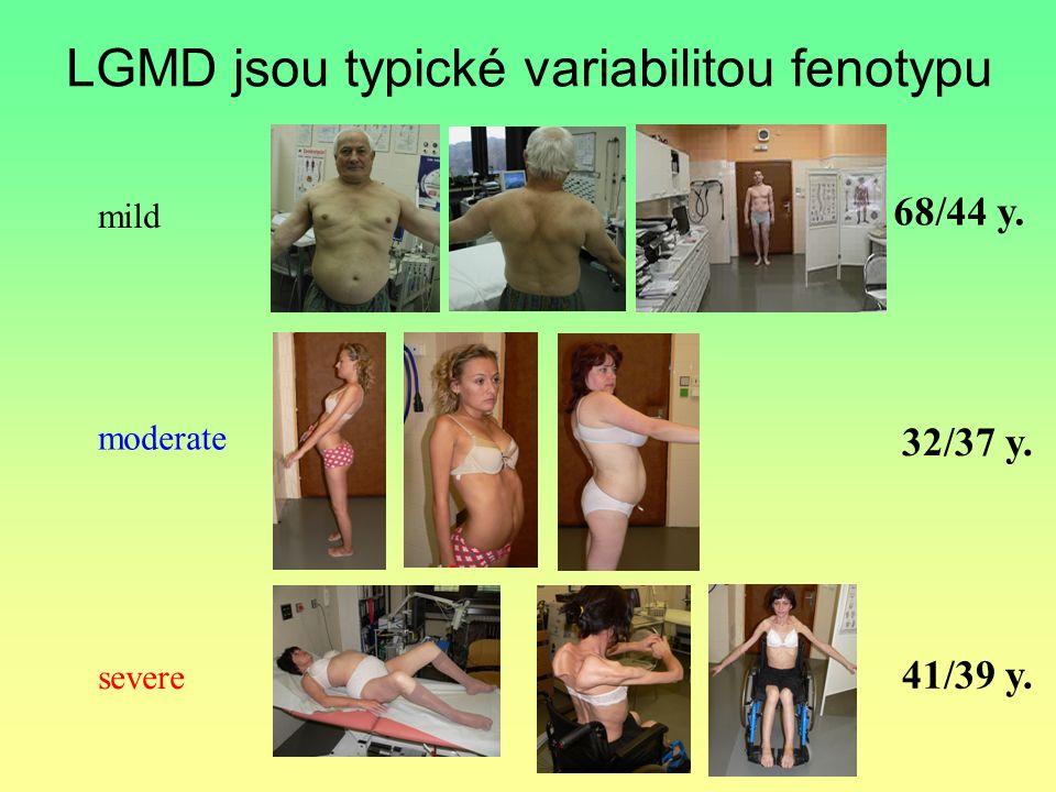 LGMD jsou typické variabilitou fenotypu