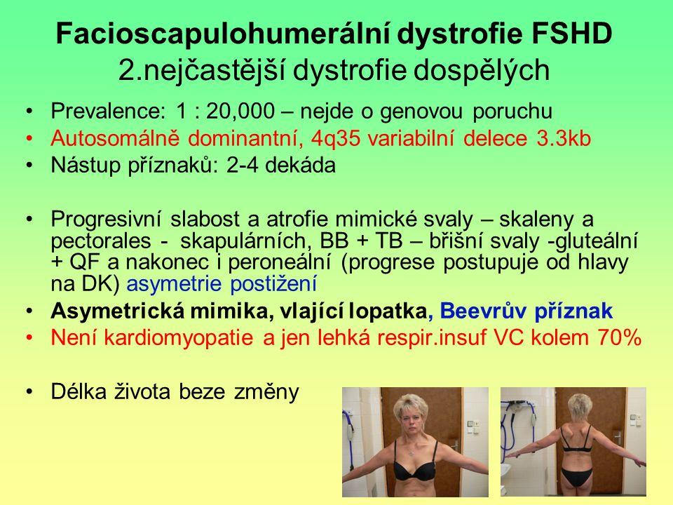 Facioscapulohumerální dystrofie FSHD 2.nejčastější dystrofie dospělých