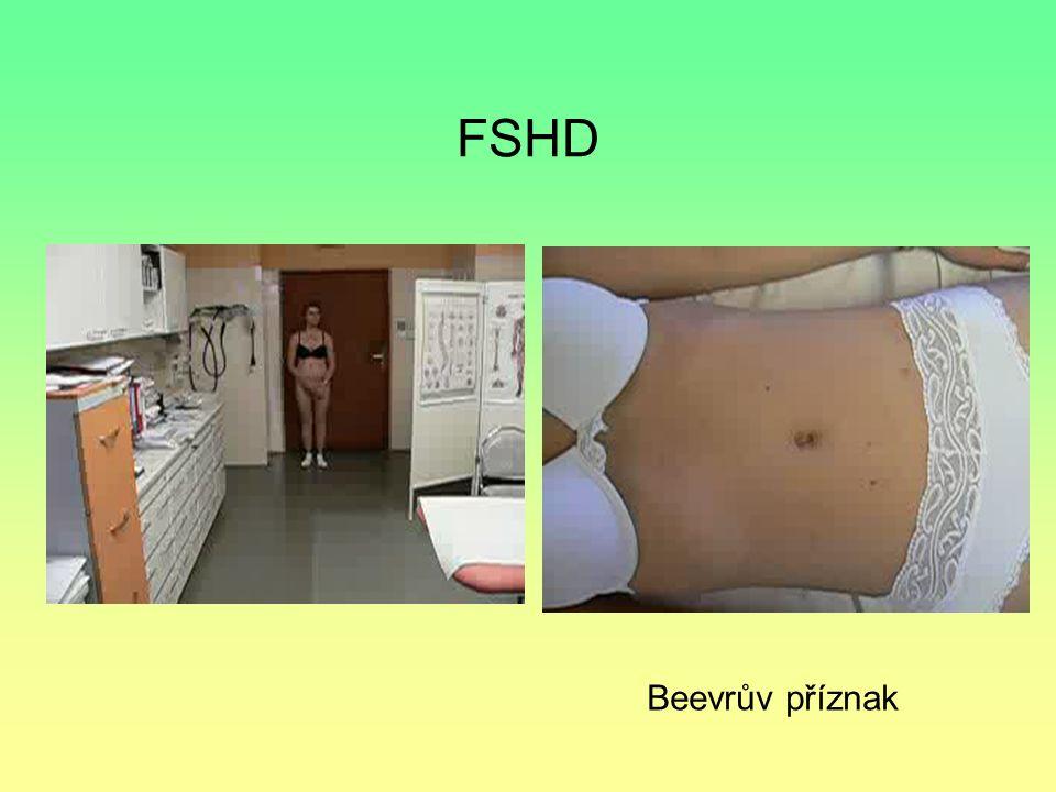 FSHD Beevrův příznak