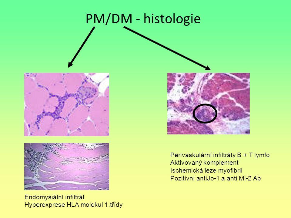 PM/DM - histologie Perivaskulární infiltráty B + T lymfo
