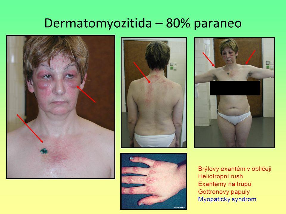 Dermatomyozitida – 80% paraneo