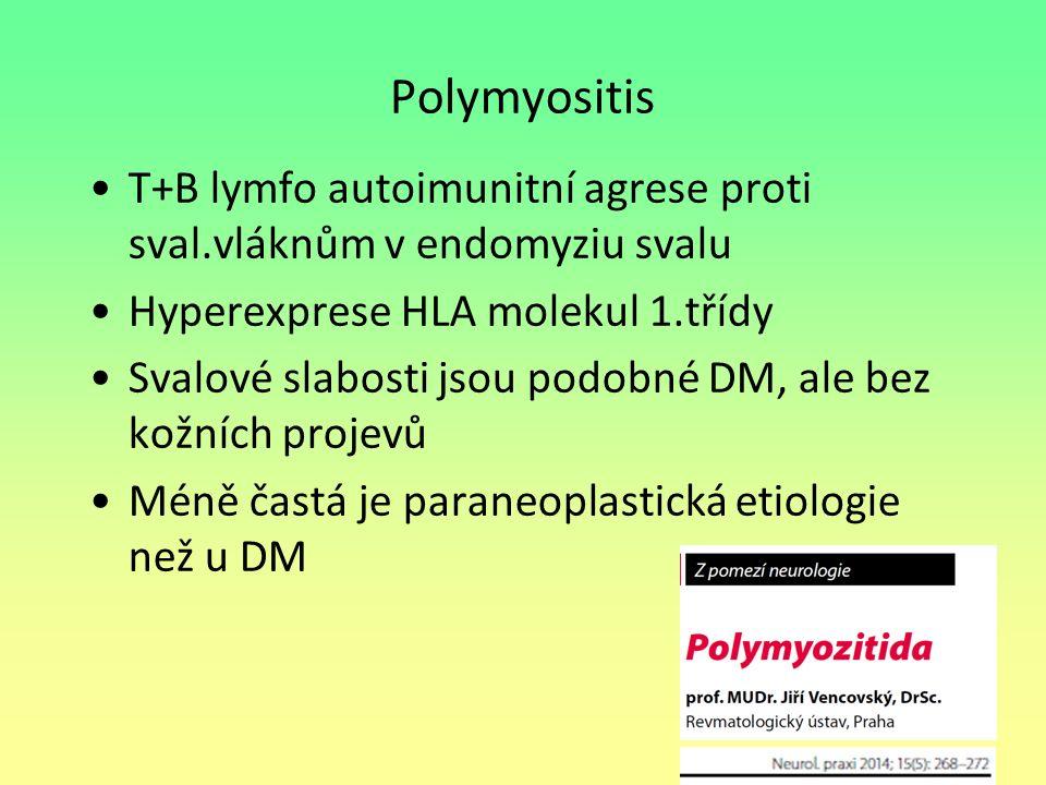 Polymyositis T+B lymfo autoimunitní agrese proti sval.vláknům v endomyziu svalu. Hyperexprese HLA molekul 1.třídy.