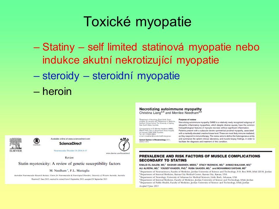 Toxické myopatie Statiny – self limited statinová myopatie nebo indukce akutní nekrotizující myopatie.