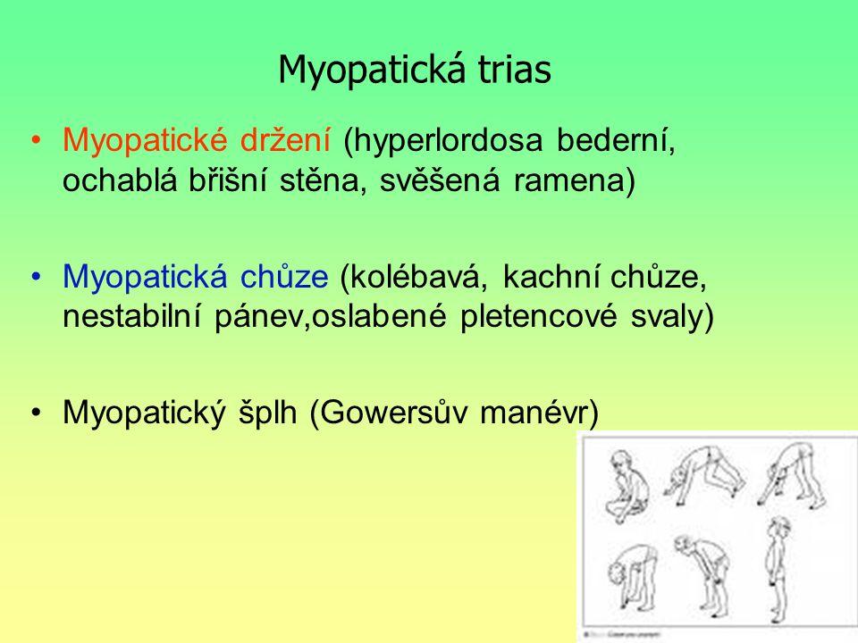 Myopatická trias Myopatické držení (hyperlordosa bederní, ochablá břišní stěna, svěšená ramena)