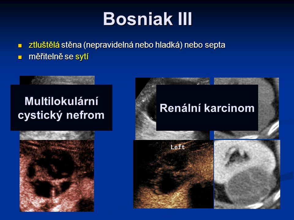 Multilokulární cystický nefrom