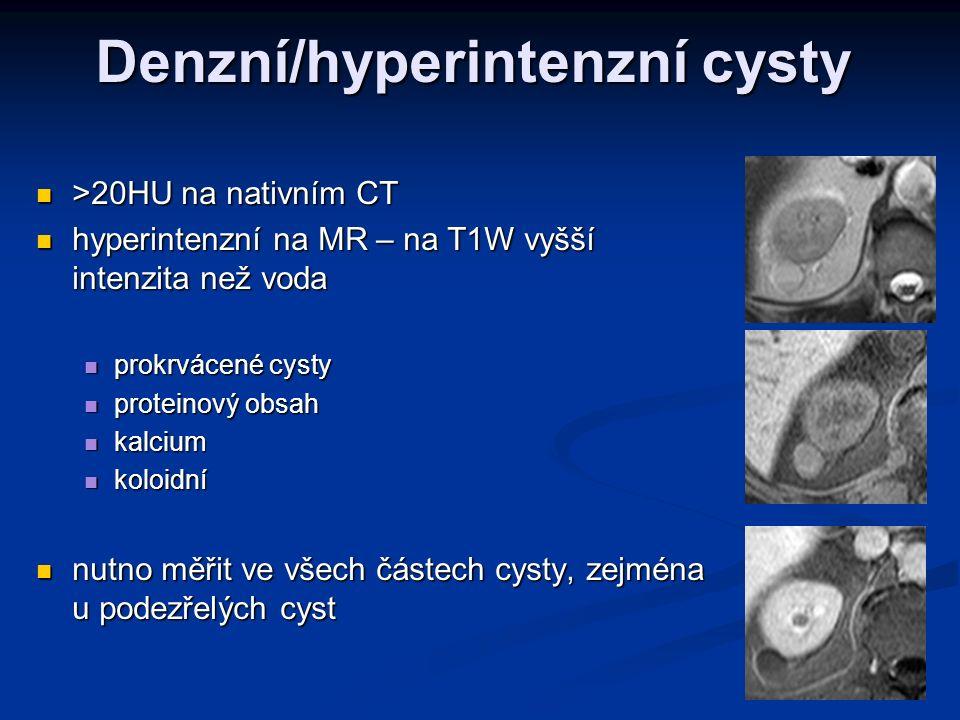 Denzní/hyperintenzní cysty