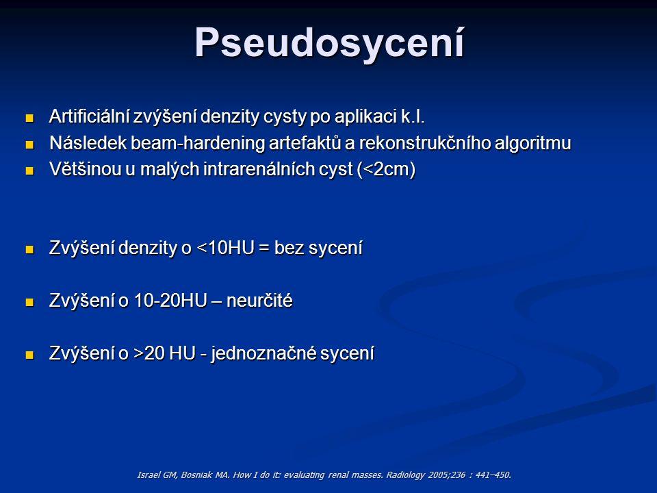 Pseudosycení Artificiální zvýšení denzity cysty po aplikaci k.l.