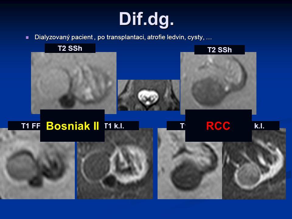 Dif.dg. Bosniak II RCC T2 SSh T2 SSh T1 FFE T1 k.l. T1 FFE T1 k.l.
