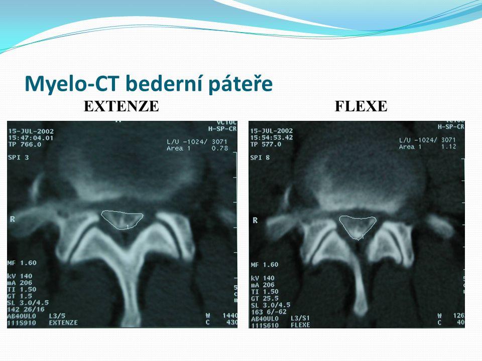 Myelo-CT bederní páteře