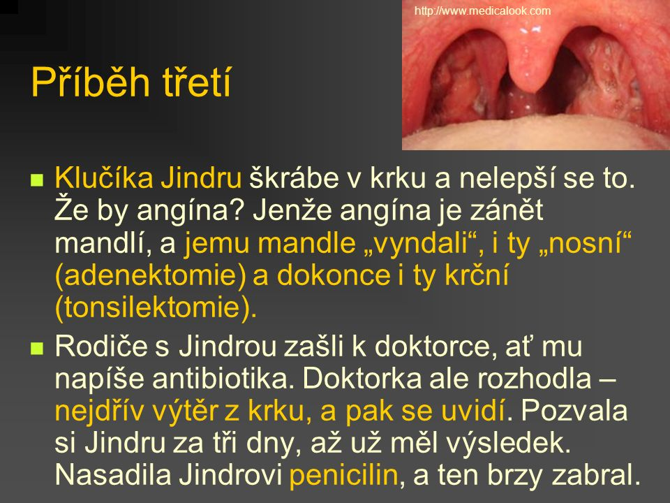 http://www.medicalook.com Příběh třetí.