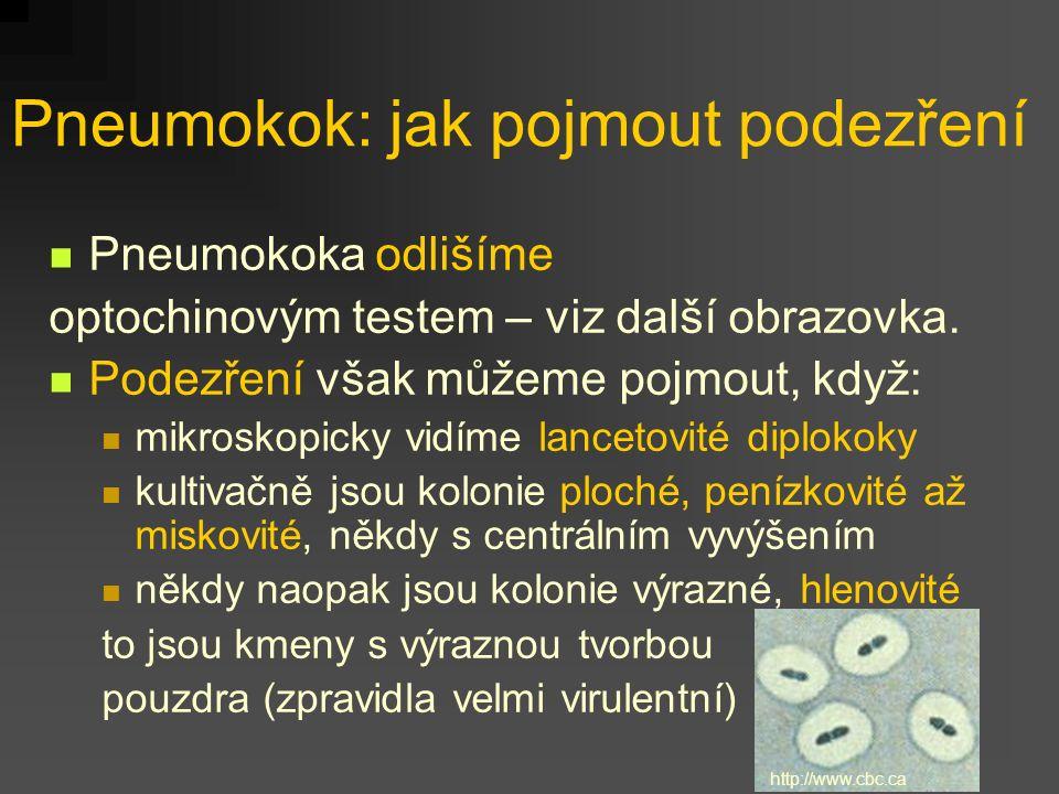 Pneumokok: jak pojmout podezření