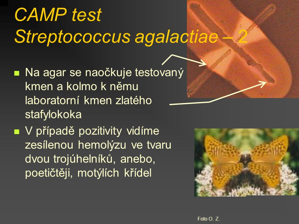 CAMP test Streptococcus agalactiae – 2