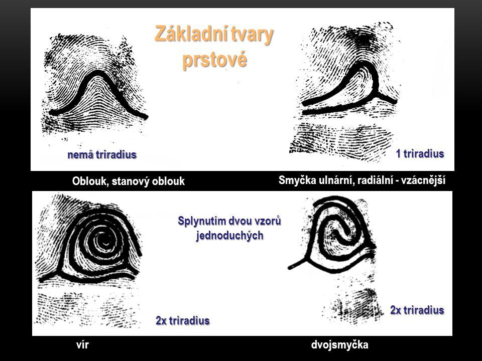 Základní tvary prstové nemá triradius 1 triradius