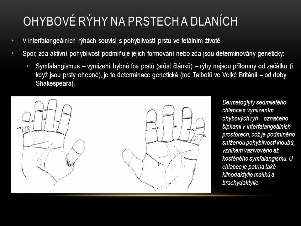 Ohybové rýhy na prstech a dlaních