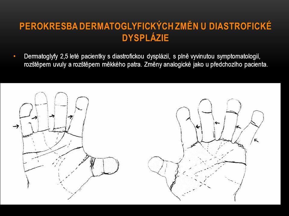 Perokresba dermatoglyfických změn u diastrofické dysplázie