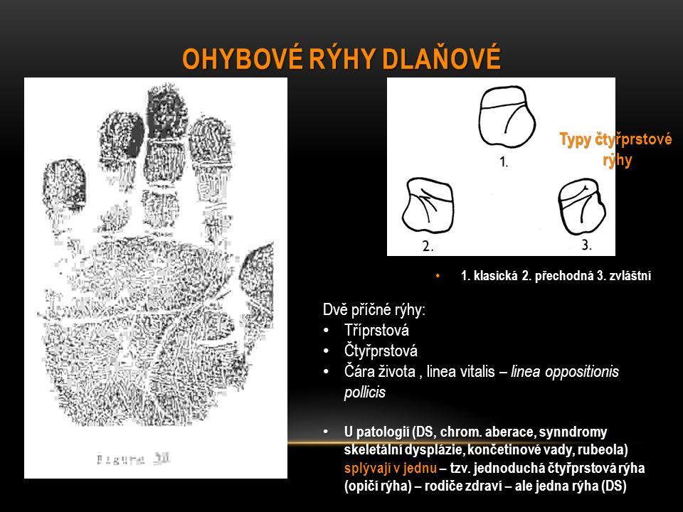 Ohybové rýhy dlaňové Typy čtyřprstové rýhy Dvě příčné rýhy: Tříprstová